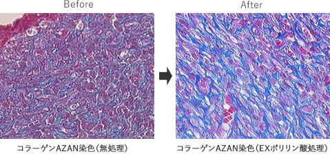 コラーゲン増産・再生促進機能によるアンチエイジング